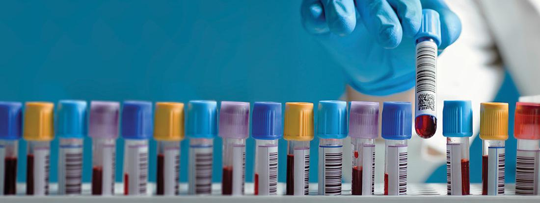A gloved hand picks up a blood sample.