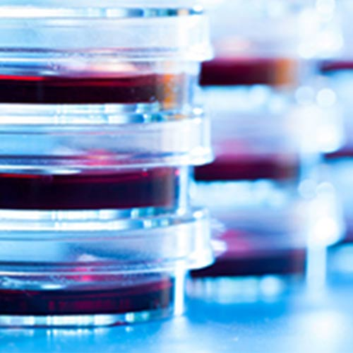 blood samples in petri dishes